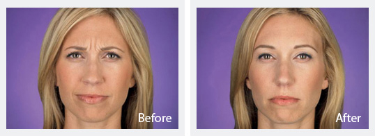 Before and After Botox 1