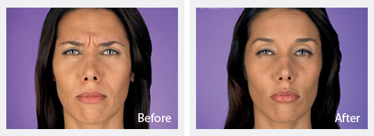 Cosmetic Dermatology Jupiter - Before and After Botox 2