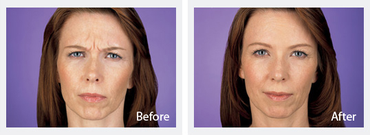Before and After Botox 4