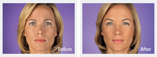 Cosmetic Dermatology Jupiter - Before and After Botox 5