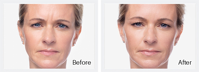 Dysport Before & After Results of Safe and natural-looking facial enhancement in, Jupiter, FL