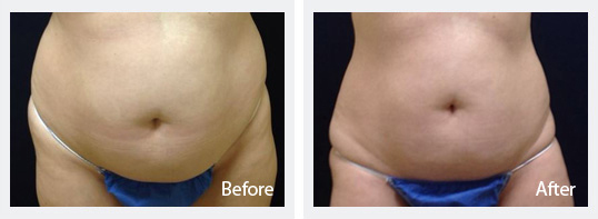 Cosmetic Dermatology Jupiter - Sculpsure Before and After