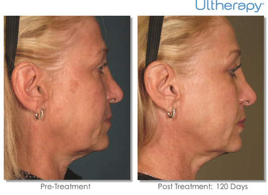 Cosmetic Dermatology Jupiter - Before After 1