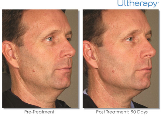 Cosmetic Dermatology Jupiter - Before After 10