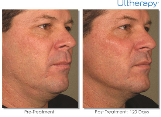 Cosmetic Dermatology Jupiter - Before After 11