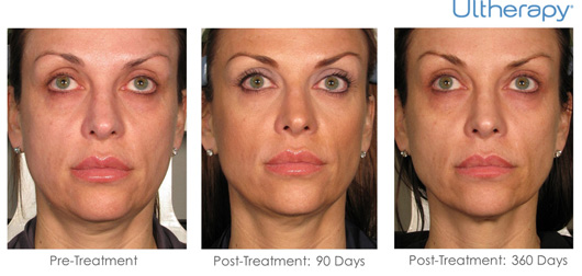 Cosmetic Dermatology Jupiter - Before After 12