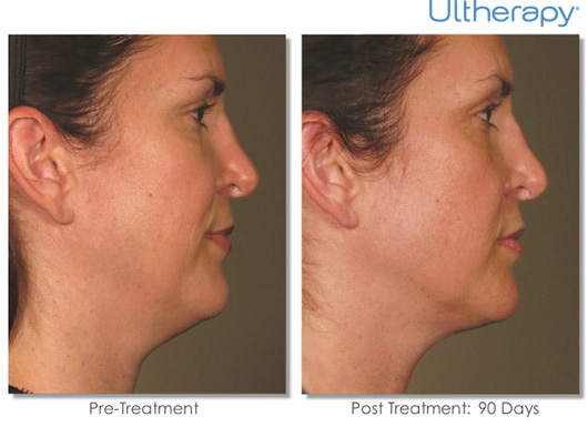 Cosmetic Dermatology Jupiter - Before After 3
