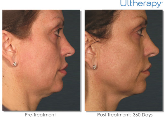 Cosmetic Dermatology Jupiter - Before After 4