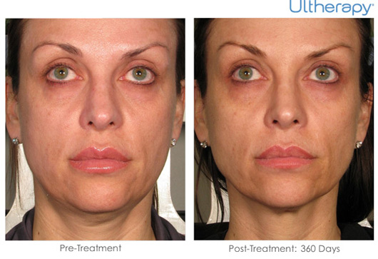 Cosmetic Dermatology Jupiter - Before After 5