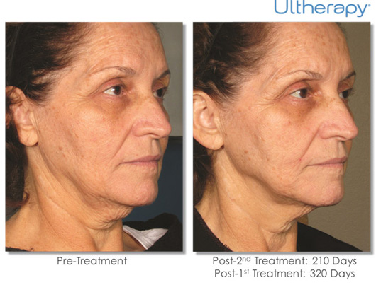 Cosmetic Dermatology Jupiter - Before After 6