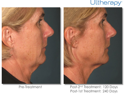 Cosmetic Dermatology Jupiter - Before After 7