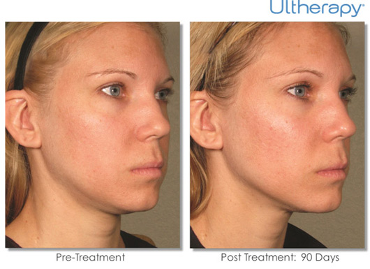 Cosmetic Dermatology Jupiter - Before After 8