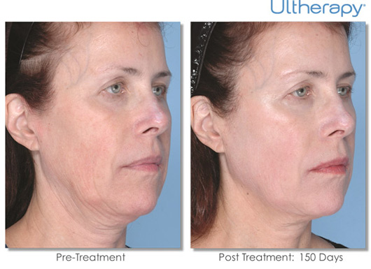 Cosmetic Dermatology Jupiter - Before After 9