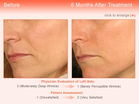 Wrinkle treatment Jupiter - Result 1 Before and After