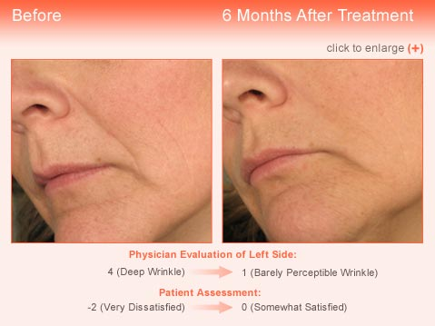 Wrinkle treatment Jupiter - Result 2 Before and After
