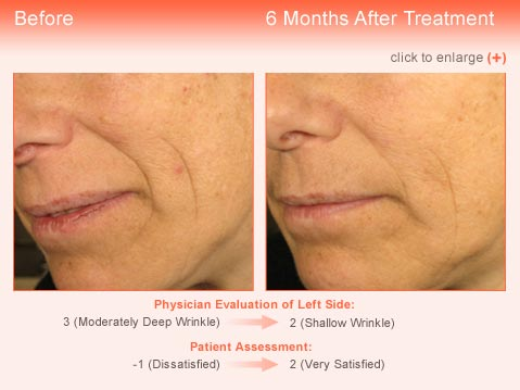Wrinkle treatment Jupiter - Result 3 Before and After