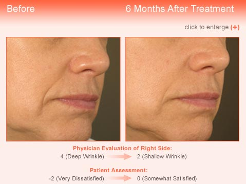 Wrinkle treatment Jupiter - Result 4 Before and After