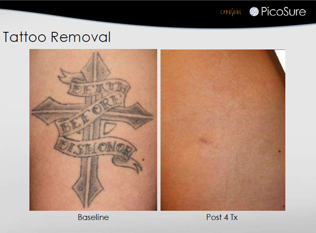 Tattoo Removal Jupiter, FL - Before and After Case 1