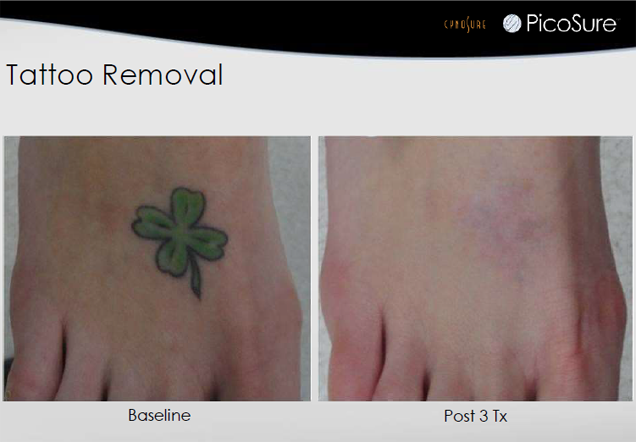 Tattoo Removal Jupiter, FL - Before and After Case 2
