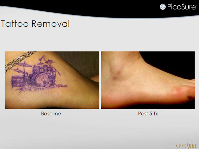 Tattoo Removal Jupiter, FL - Before and After Case 3