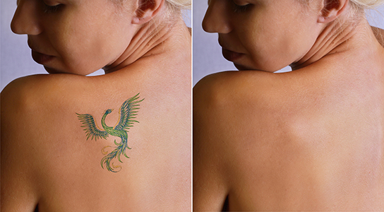 Tattoo Removal Befor and After, Tattoo Removal Therapies in FL